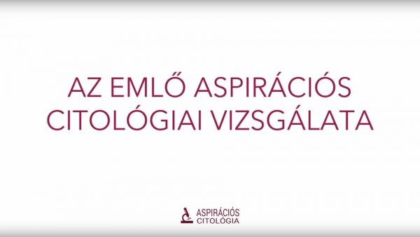 Az emlő aspirációs citológiai vizsgálata