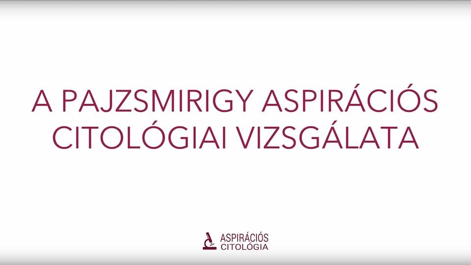 A pajzsmirigy aspirációs citológiai vizsgálata