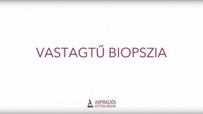 Vastagtű biopszia
